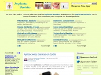 implantesdental.info
