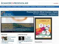 CancerenProstata.mx